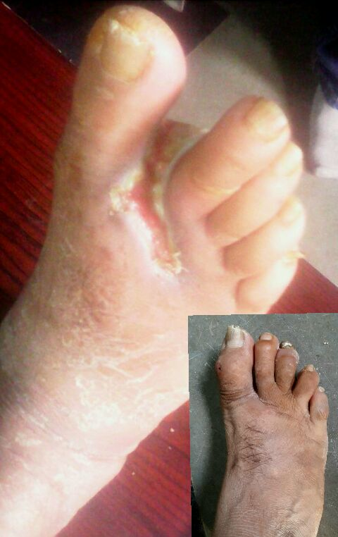 Good news for gangrene patient