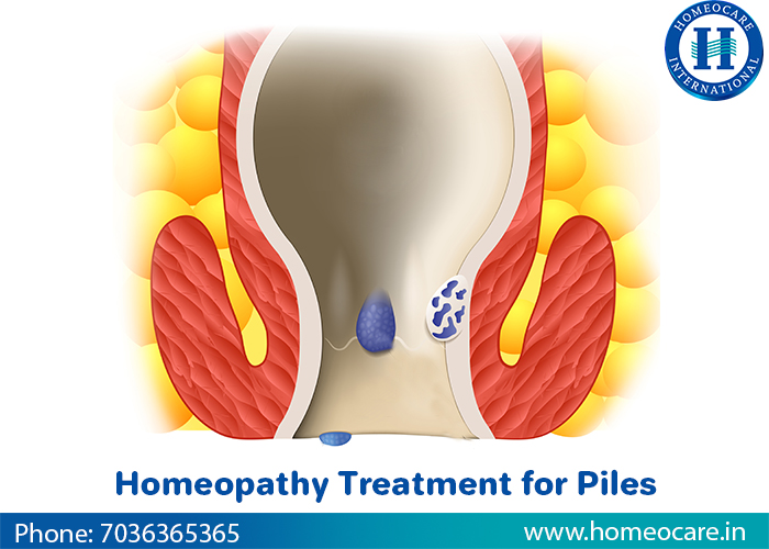 Natural and safe Homeopathy Treatment for Piles